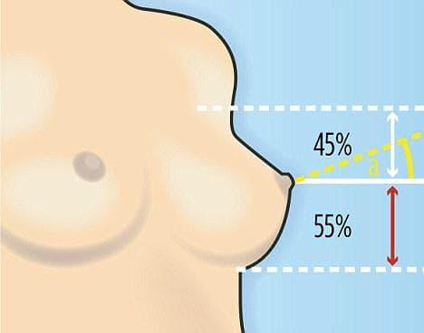коррекция женской груди