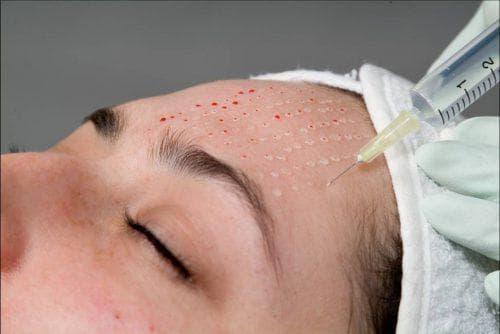 Подготовка к плазмолифтингу лица
