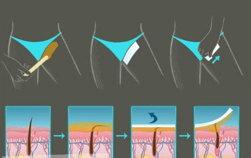 удаление волос воском в зоне бикини