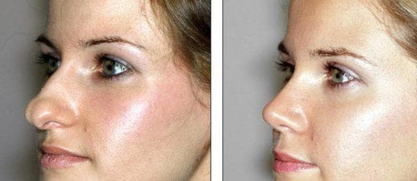 изменение крыльев носа