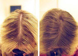 мезотерапия волос до и после процедуры