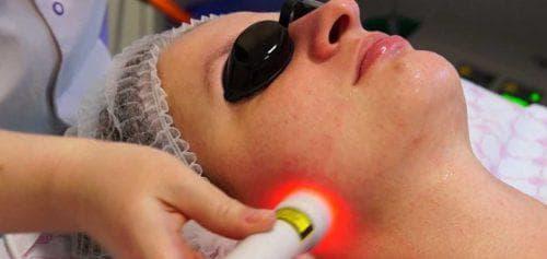 лазерная дермабразия