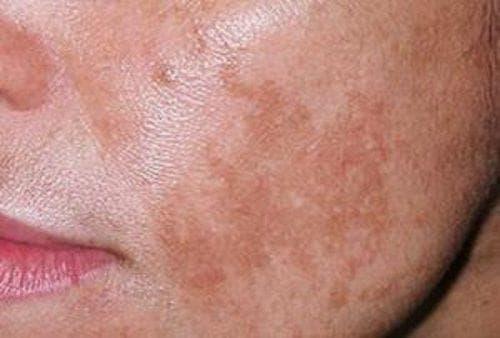 появление на коже пигментных участков