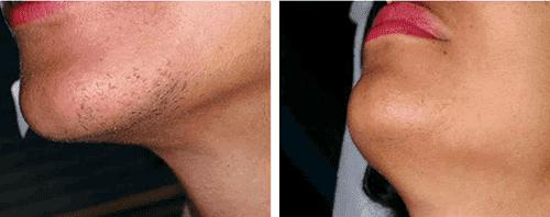 лазерная эпиляция лица до и после