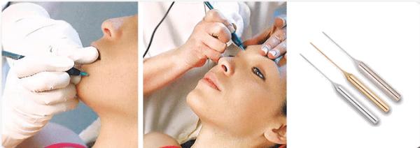 электроэпиляция волос игольчатый метод