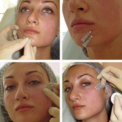 мононить для подтяжки кожи лица