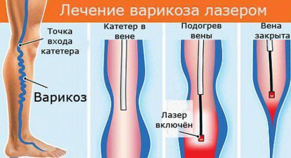 удаление вен лазером в клинике