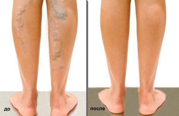 удаление вен лазером до и после процедуры
