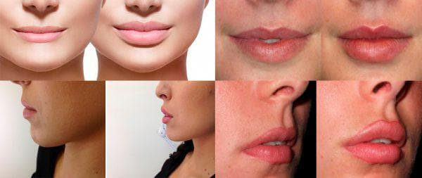коррекция контура губ