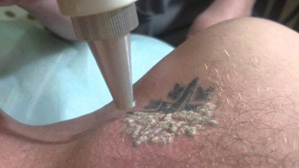 селективный метод удаления татуажа