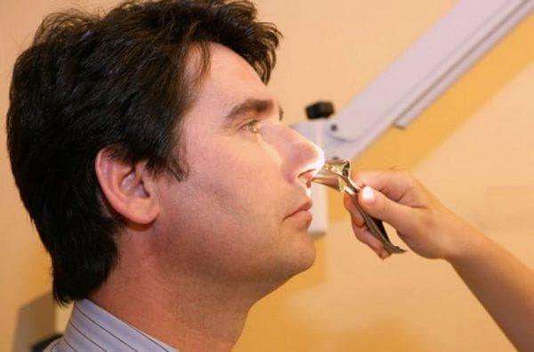 Ринопластика перегородки носа