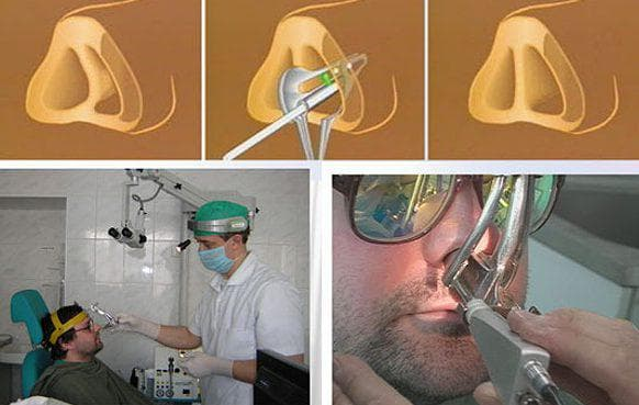 ринопластика кончика носа лазером