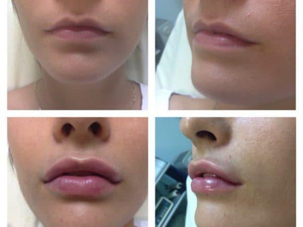 Заполнение контура губ филером