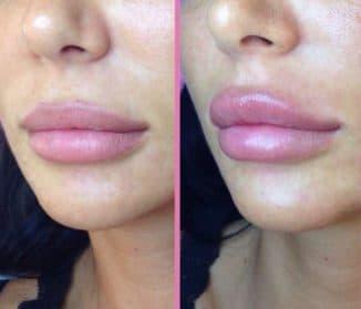 сколько отек после увеличения губ гиалуроновой кислотой