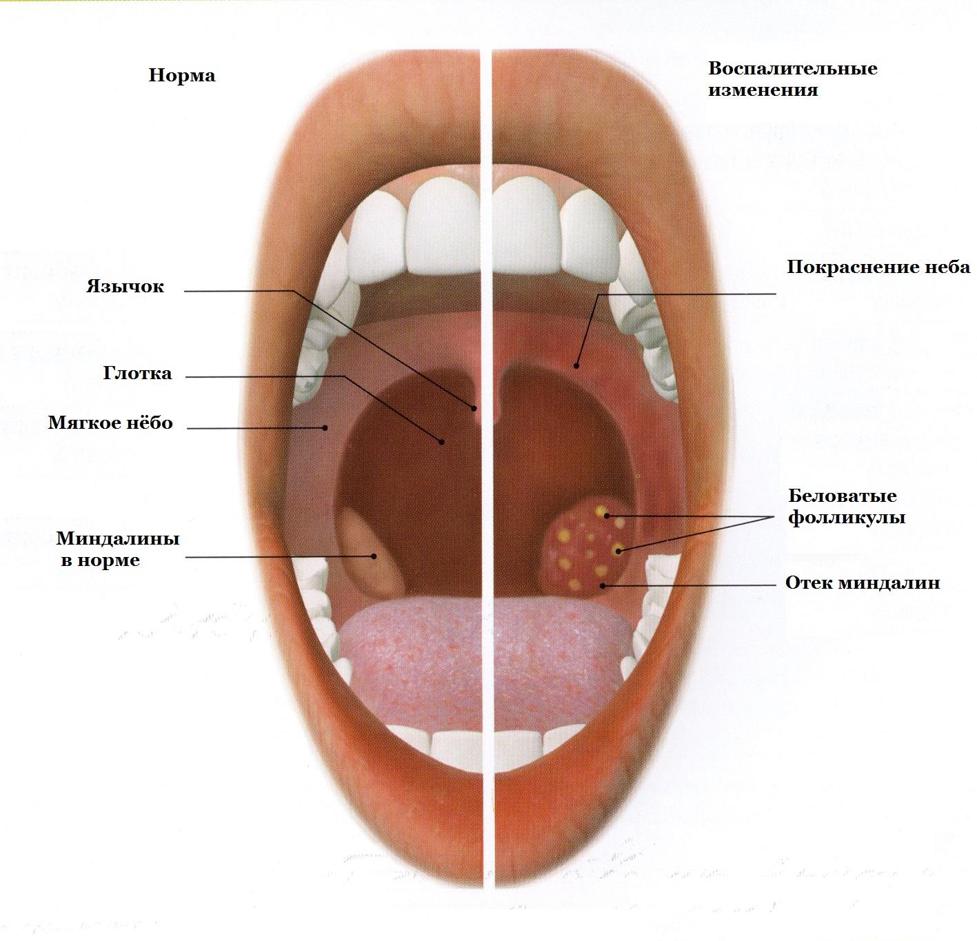 картинка ангины у человека