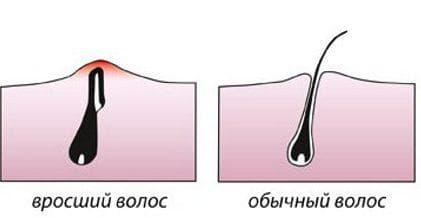 вросшие волосы после эпиляции