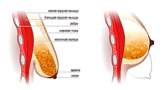 подтяжка кожи груди