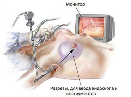 эндоскопическая пластика