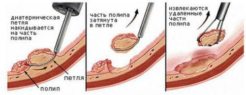 хирургическая операция по удалению папиллом