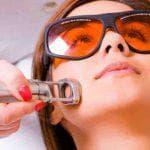 Способы удаления сосудов на лице