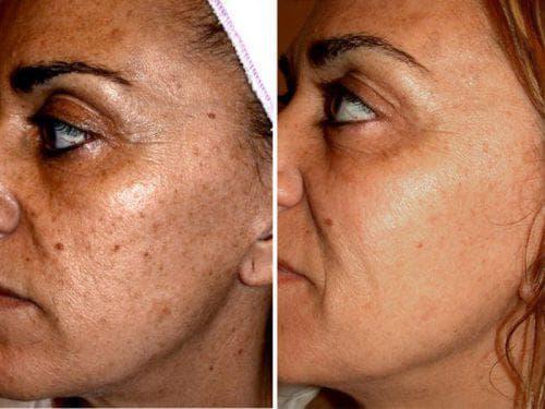 омолаживание кожи озонотерапией