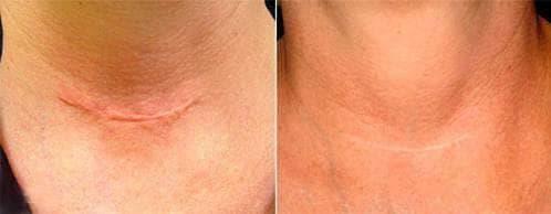 нормотрофические шрамы