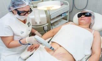 лазерное удаление шрама