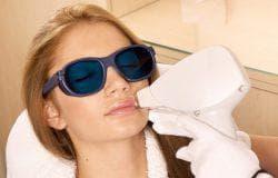 лазерная эпиляция усов