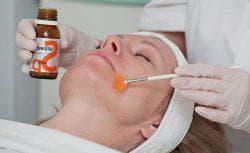 салициловая кислота для пилинга лица