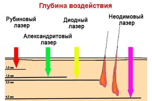 рубиновый лазер для эпиляции