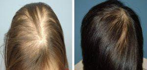 плазмолифтинг волос до и после