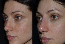 результат коррекции носа филлерами