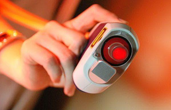 рубиновый лазер для кожи