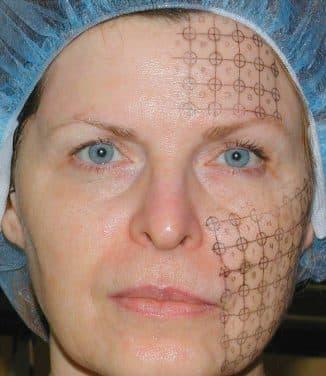 обработка кожи по зонам