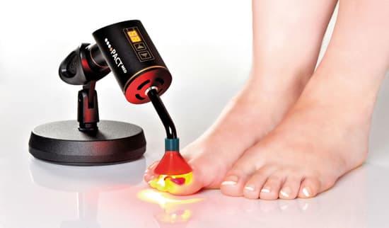 диодное лазерное лечение грибка ногтей
