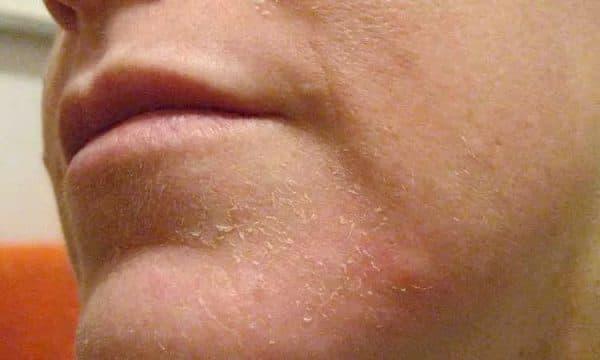 так может быть выглядеть шелушение кожи лица